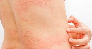 Besin Alerjilerinde Beslenme Tedavisi Nasıl Olmalı?