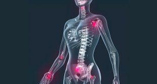 Fibromiyalji Nedir? Nasıl Beslenmeliyim?